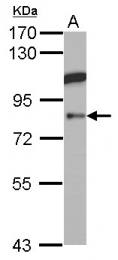 GTX101421 - ABP1