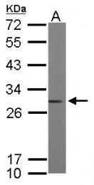GTX101428 - ARHGDIA / GDIA1