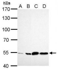 GTX101429 - ALDH2
