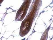 GTX101435 - Catenin beta-1
