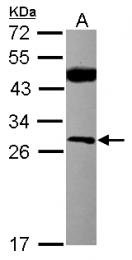 GTX101439 - Casein kinase II beta
