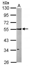 GTX101471 - ARHGAP1