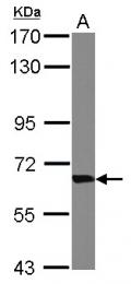 GTX101477 - Transketolase (TKT)
