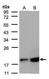 GTX101499 - COX IV isoform 1