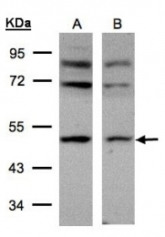 GTX101502 - AP2 complex subunit mu-1 / AP2M1