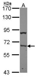 GTX101515 - PABPC1
