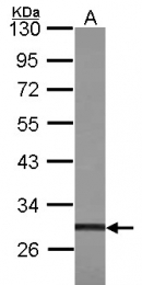 GTX101518 - TIS11B / ZFP36L1