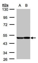 GTX101553 - Neuron specific enolase