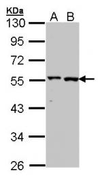 GTX101559 - Alanine aminotransferase 1 (ALT1)