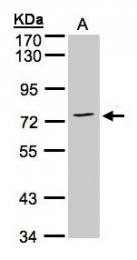 GTX101604 - Annexin A6 / ANXA6