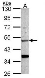 GTX101606 - Chitinase 1