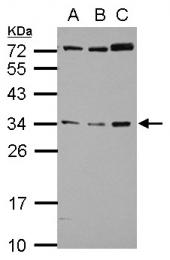 GTX101612 - Folate receptor alpha
