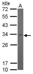 GTX101614 - RPL8