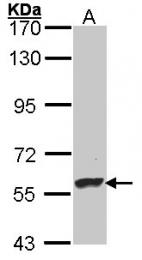 GTX101616 - Dopamine beta-hydroxylase