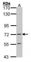GTX101648 - Acetylcholinesterase