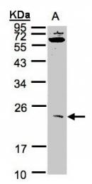GTX101653 - UBE2M