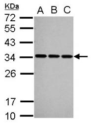 GTX101664 - U1 snRNP protein A