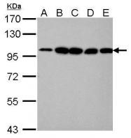GTX101669 - Alpha-actinin-4 / ACTN4