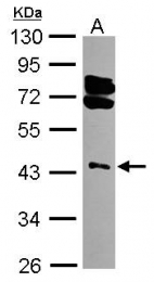 GTX101671 - RING1 / RNF1