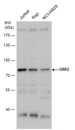 GTX101682 - Beta-ARK-1 / ADRBK1