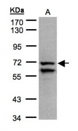 GTX101688 - Complex II subunit 70 kDa Fp