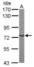 GTX101689 - Complex II subunit 70 kDa Fp