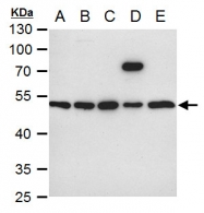 GTX101691 - Integrin-linked protein kinase