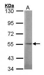 GTX101701 - Sulphamidase / SGSH