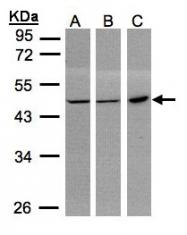 GTX101703 - PGD / PGDH