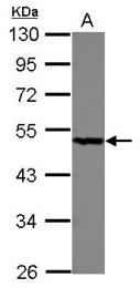 GTX101704 - PGD / PGDH