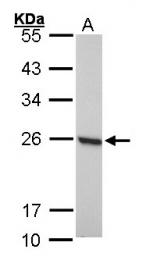 GTX101705 - Peroxiredoxin-1 / PRDX1