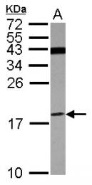 GTX101768 - ATP6V1F