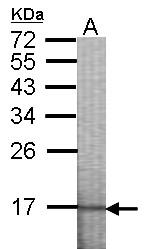 GTX101773 - Casein kinase I epsilon