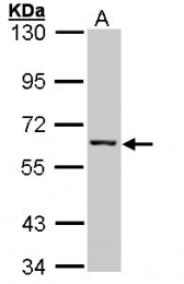 GTX101778 - IMPDH2