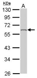 GTX101786 - hnRNP-K / HNRNPK