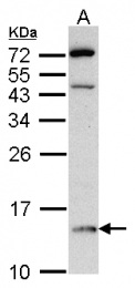 GTX101791 - D-dopachrome decarboxylase