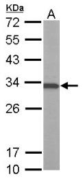GTX101799 - ATP6V1E1