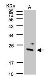 GTX101812 - Guanylate kinase / GUK1