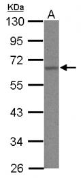 GTX101815 - hnRNP-K / HNRNPK