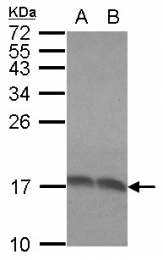 GTX101823 - RPLP2