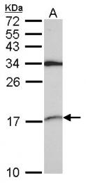 GTX101846 - snRNP-D2  / Sm-D2
