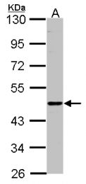 GTX101851 - CD39L2 / ENTPD6