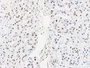 GTX101852 - hnRNP-A/B / HNRNPAB