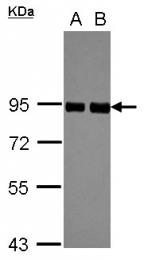 GTX101856 - Glucosidase 2 subunit beta