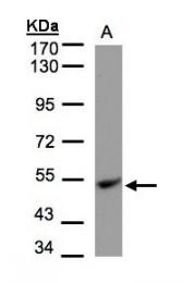 GTX101862 - UQCRC1 (Complex III subunit core 1)