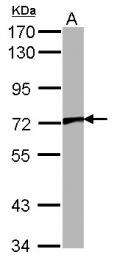 GTX101868 - TRPV2 / VRL1