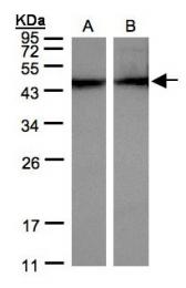 GTX101876 - alpha 1 cardiac muscle Actin / ACTC1