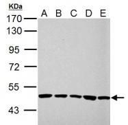 GTX101896 - UQCRC1 (Complex III subunit core 1)