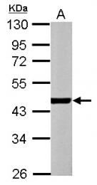 GTX101900 - alpha 1 cardiac muscle Actin / ACTC1