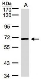 GTX101921 - ACVRL1 / ALK1